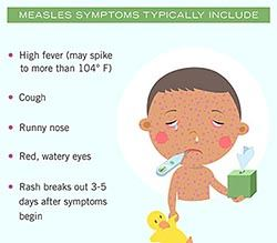 Measles Symptoms Include high fever cough runny nose red watery eyes and rash cartoon of sick boy